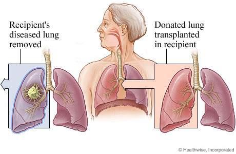 Lung Transplants